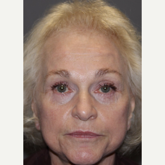 65-74 year old woman treated with Facelift Revision after 3383798