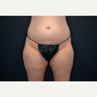 25-34 year old woman treated with Liposuction before 3055033