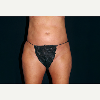 25-34 year old woman treated with Liposuction after 3055033