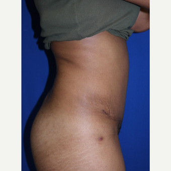Tummy Tuck after 3743917