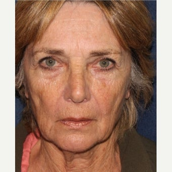 55-64 year old woman treated with Radiesse before 1592624
