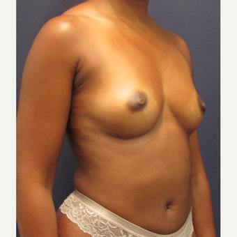 25-34 year old woman treated with Fat Transfer after 3287335
