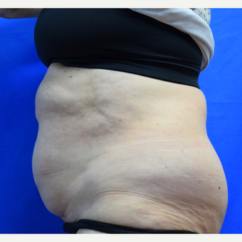 65-74 year old woman treated with CoolSculpting after 2996260