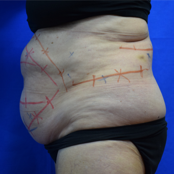 65-74 year old woman treated with CoolSculpting before 2996260