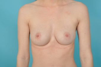 18-24 year old woman treated with Nipple Surgery after 1560562