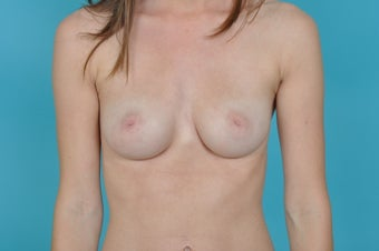 18-24 year old woman treated with Nipple Surgery before 1560562