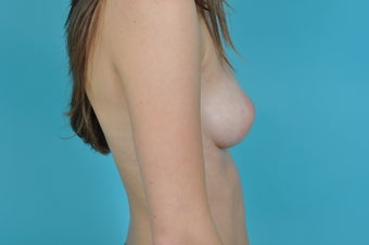 18-24 year old woman treated with Nipple Surgery 1560562