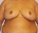 31-year-old breast reduction after 1280215