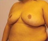 31-year-old breast reduction 1280215