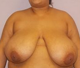 31-year-old breast reduction before 1280215