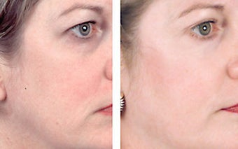 TCA Chemical Peel with 35% TCA before 6344