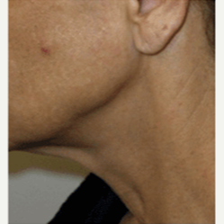 45-54 year old woman treated with Facelift before 3500855