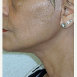 45-54 year old woman treated with Facelift after 3500855