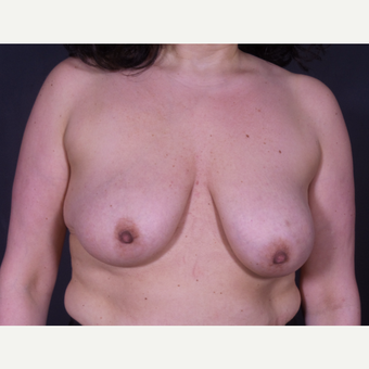 35-44 year old woman treated with Bilateral Vertical Mastopexy before 3847008