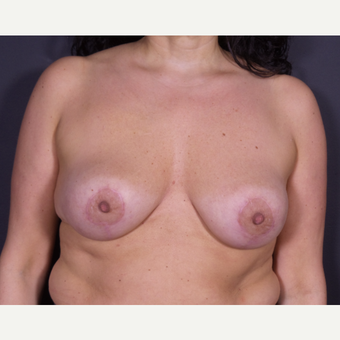 35-44 year old woman treated with Bilateral Vertical Mastopexy after 3847008