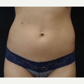 23 year old woman treated with SculpSure to upper and lower abdomen before 2767536