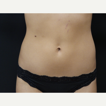 23 year old woman treated with SculpSure to upper and lower abdomen after 2767536