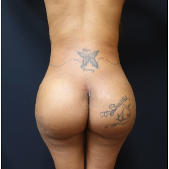 25-34 year old woman treated with 712cc Round Butt Implants after 3129117
