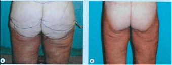 45-54 year old woman treated with Lower Body Lift after 3663697