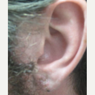 25-34 year old man treated with Ear Lobe Surgery after 2197627