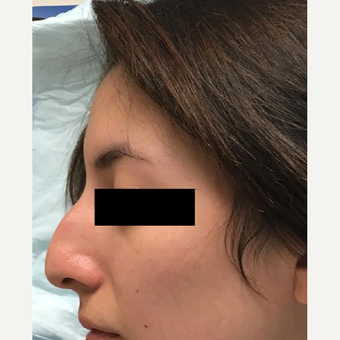18-24 year old woman treated with Nose Surgery before 3809199
