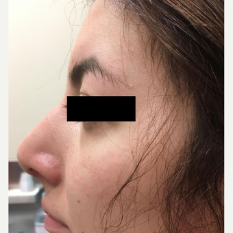 18-24 year old woman treated with Nose Surgery after 3809199