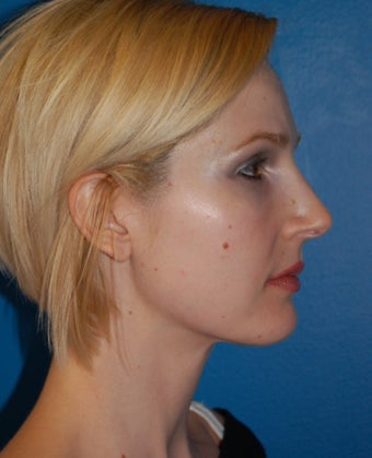 Neck Liposuction after 902866