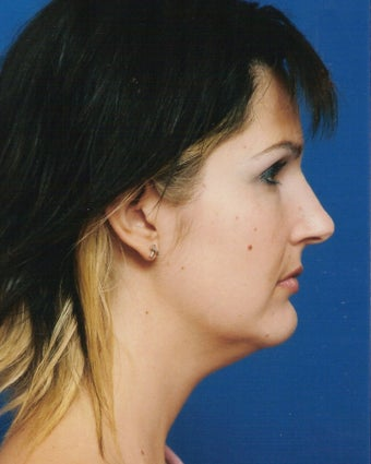 Neck Liposuction before 902866