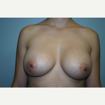 18-24 year old woman treated with Breast Augmentation after 3338499