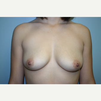 18-24 year old woman treated with Breast Augmentation before 3338499
