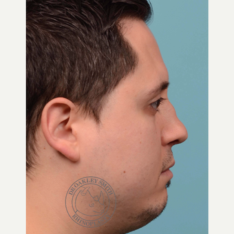 25-34 year old man treated with Revision septoplasty/Rhinoplasty with rib graft before 3092793