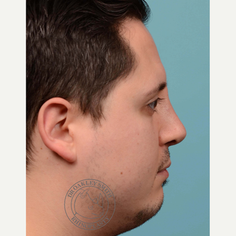25-34 year old man treated with Revision septoplasty/Rhinoplasty with rib graft after 3092793