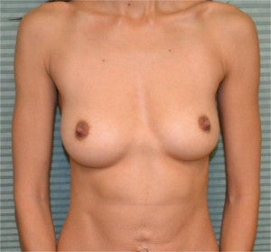 35 year old female breast augmentation before 1342405