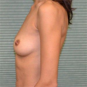 35 year old female breast augmentation 1342405