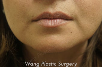 Juvederm to improve marionette lines before 693347
