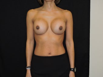 35-45 yr old woman with breast augmentation after 3287956