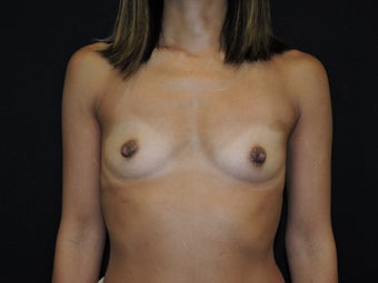 35-45 yr old woman with breast augmentation before 3287956