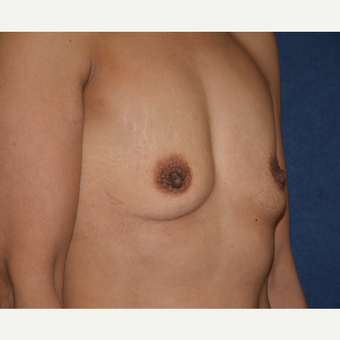 45-54 year old woman treated with Breast Implants before 3454908
