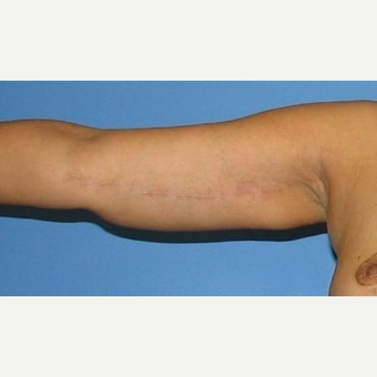 35-44 year old woman treated with Arm Lift after 2979270
