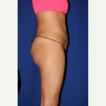 25-34 year old woman treated with Liposculpture 1579205