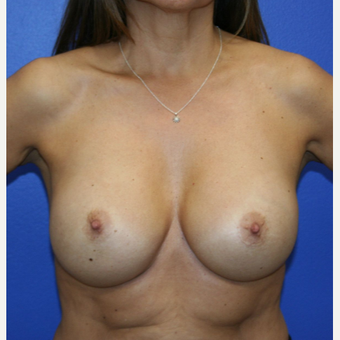 25-34 year old woman treated with Breast Implant Revision after 2994026