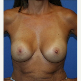 25-34 year old woman treated with Breast Implant Revision before 2994026