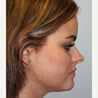 18-24 year old woman treated with Rhinoplasty for overprotected nasal tip before 2984606