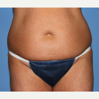 45-54 year old woman treated with Liposuction before 3069717