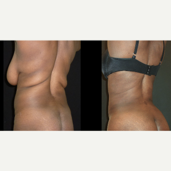25-34 year old woman treated with Liposuction before 3717664