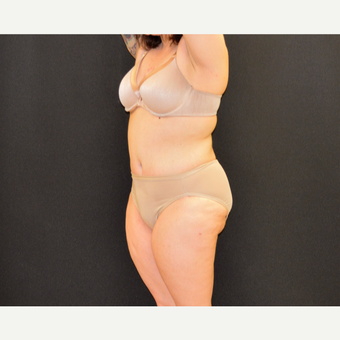 "This 33 year old is 5'2"" and 150 pounds.  She underwent Dr. Campanile's patented CLASS Tummy Tuck after 3774899"