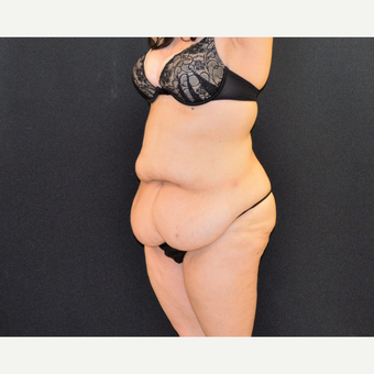 "This 33 year old is 5'2"" and 150 pounds.  She underwent Dr. Campanile's patented CLASS Tummy Tuck before 3774899"