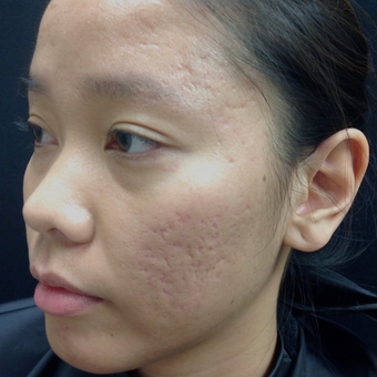 25-34 year old woman treated with Microneedling before 3844409