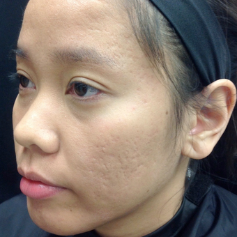 25-34 year old woman treated with Microneedling after 3844409