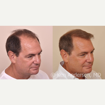 57yo man -  ARTAS Robotic Hair Transplant, and PRP with ACell after 3008928
